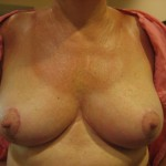 (After) 52 year old woman. 600 grams removed and lifted.